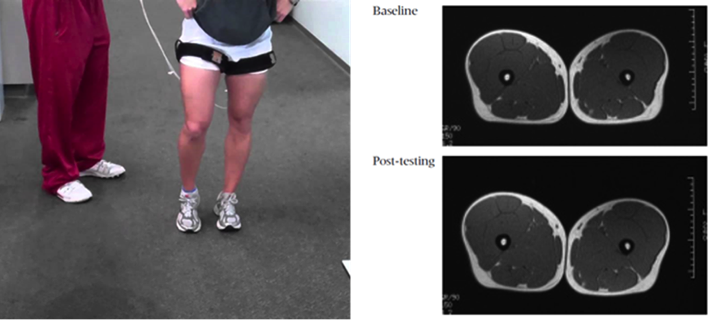 fissac _ pérdida masa muscular hipertrofia