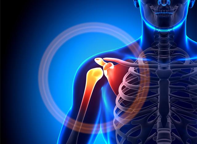 ¿Dolor en el hombro? Por qué ocurre y cómo puedes evitarlo