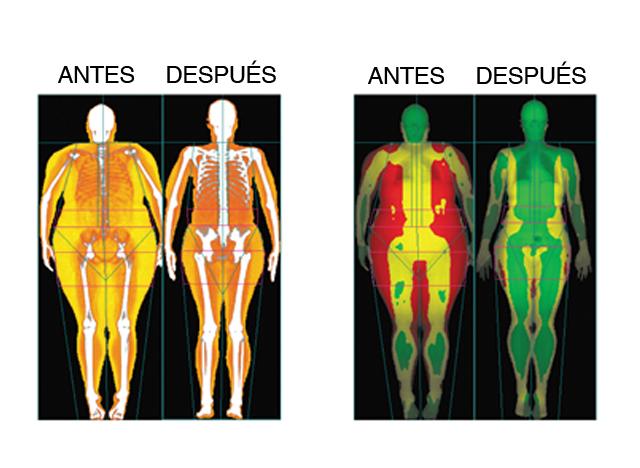 Dieta cetogenica antes y despues
